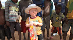 Malawi: «vague sans précédent» d'attaques contre les albinos