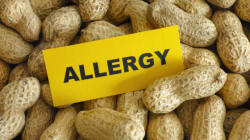 Managing Food Allergies At Summer