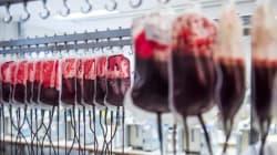 L'âge et le sexe du donneur de sang déterminent la survie du