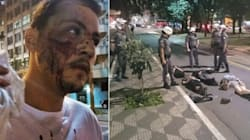 SP: Ato pacífico contra impeachment termina com ferido por bomba da PM e