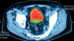 Cancer localisé de la prostate: pas de différence avec ou sans