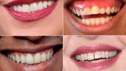 ¿De qué famosos son estas sonrisas?