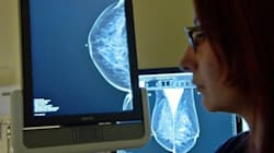 Une approche plus douce pour traiter certains cancers du