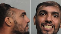 Florida Man With 'Half A Head' Arrested For Attempted