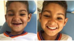 Este garotinho não tinha dentes. Após tratamento, ele conseguiu o sorriso mais cativante de