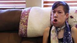 Cette jeune femme avec une tumeur faciale chante pour ne plus être