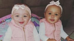 These Rare (And We Mean Rare) Twins Will Make Your Heart