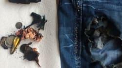Calgarian Severely Burned After E-Cig Battery
