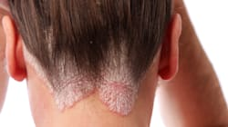 6 Things You Can Do To Make Psoriasis