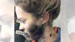 Passenger's Face Burned After Headphones Explode During