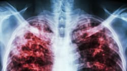 Learn The Facts Of TB On World Tuberculosis