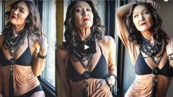「私のしわは最高に美しい」難病と向き合う26歳のモデルは伝える
