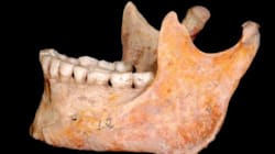 Paleo People Didn't Need Dental Check-Ups, But You