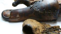 La plus vieille prothèse de