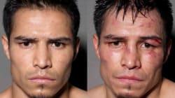 PHOTOS. Portraits de boxeurs avant et après le