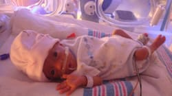 Amélia Renard, Born At 375 Grams, Goes