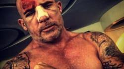 'Prison Break' TV Star Narrowly Avoids Death From Iron