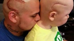 Best Dad Ever Gets Son's Scar From Cancer Tattooed In Same