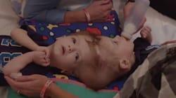 Conjoined Twins Jadon and Anias McDonald Successfully