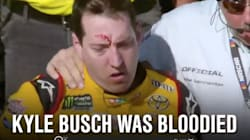NASCAR Brawl Leaves Driver Bloody -- And The Butt Of Internet