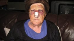 83-Year-Old Woman Bashed In Cowardly Sydney