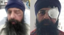 Sikh Techie Beaten, Hair Cut With Knife In Alleged Hate Crime In