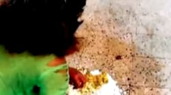 Patient At Ranchi Govt Hospital Made To Eat Off The Floor Because 'There Are No