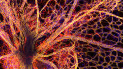 Our Bodies Are Capable Of Amazing Beauty -- Blood, Cancer And