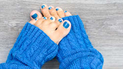 Why You Should Give Your Toenails A Break From Polish In