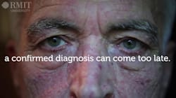 Watch: Australian Scientists Made A Tool To Spot Parkinson's Before Physical