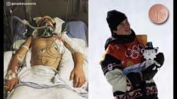 Jeux olympiques d'hiver 2018: ces deux photos de ce médaillé canadien en slopestyle ont été prises à moins d'un an