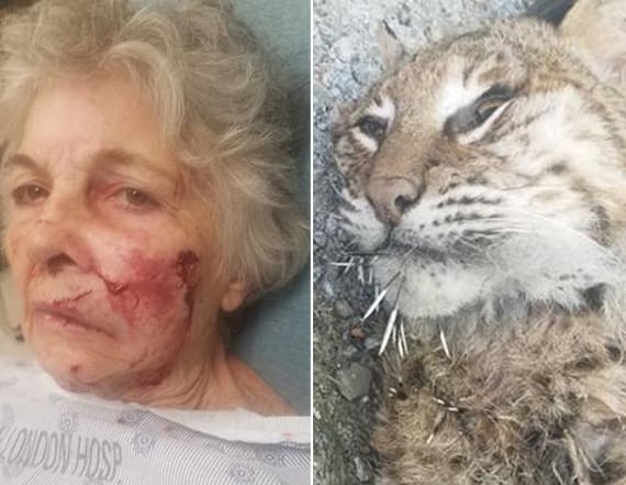 80-year-old woman attacked by bobcat while gardening