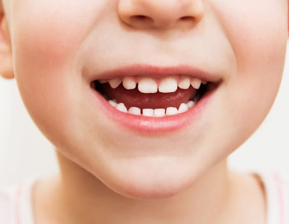 Life-saving reason to save your child's baby teeth