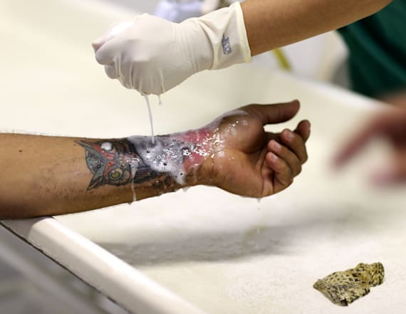 Doctors are using fish skin to treat burn victims