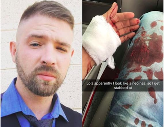 Man stabbed for having a 'neo-Nazi' haircut