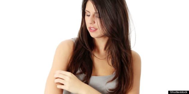 young beautiful woman scraching ...