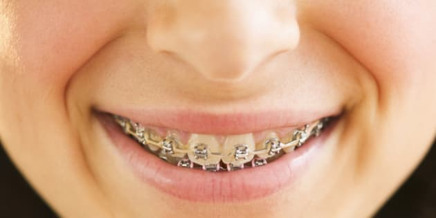 Im 36 its time to get my braces off solutioingenieria Choice Image