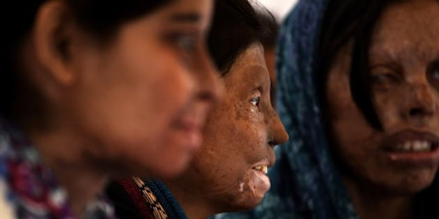 Indian acid attack survivors looks on as they mark the beginning of a hunger strike in New Delhi on December 12, 2014.  Activists from Stop Acid Attacks launched the 'Hunger Strike of Acid Attack Fighters' campaign  to highlight the rights of survivors of acid attacks and including a call for the ban of the sale of over-the-counter acid.  AFP PHOTO / CHANDAN KHANNA        (Photo credit should read Chandan Khanna/AFP/Getty Images)