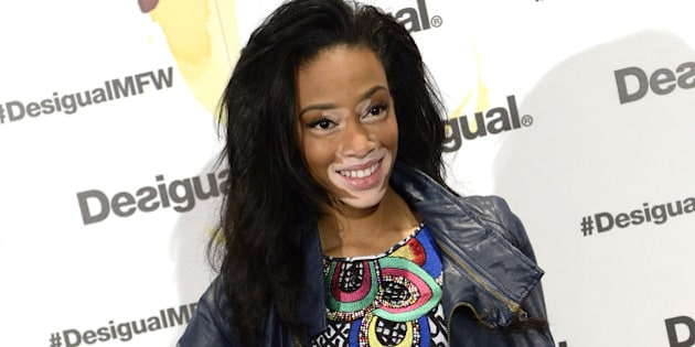 MADRID, SPAIN - FEBRUARY 06:  Model Winnie Harlow is presented as 'Desigual' new face at Desigual store on February 6, 2015 in Madrid, Spain.  (Photo by Fotonoticias/Getty Images)