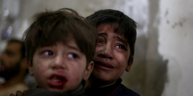 Syrian children react as they wait for treatment at a makeshift hospital in the rebel held area of Douma, north east of the capital Damascus, following reported air strikes by forces loyal to President Bashar al-Assad on February 2, 2015. More than 200,000 people have been killed in Syria since the conflict started, and around half of the country's population has been displaced. AFP PHOTO / ABD DOUMANY        (Photo credit should read ABD DOUMANY/AFP/Getty Images)
