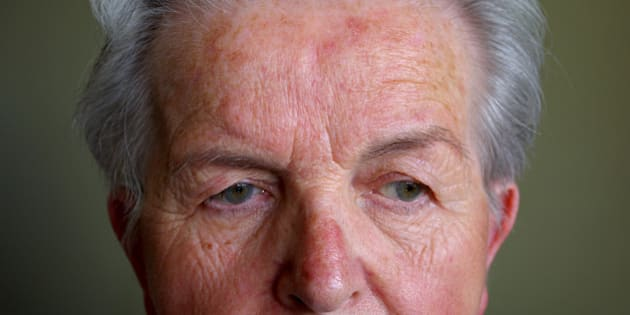 Rosacea is a common but often misunderstood condition that is estimated to affect over 45 million people worldwide. It affects fair-skinned people of mostly north-western European descent, and has been nicknamed the curse of the Celts by some in Ireland. I