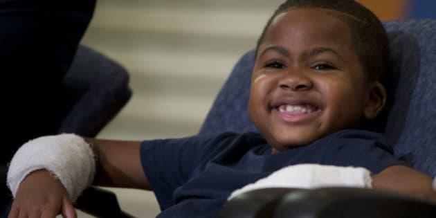 Zion Harvey, 8 anni, riceve un doppio trapianto di mani: è il primo caso al mondo (FOTO)