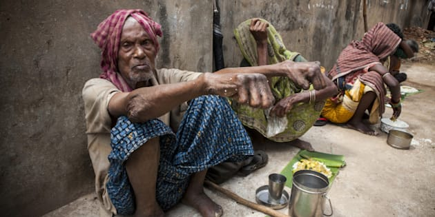 A man with leprosy waiting for food handouts