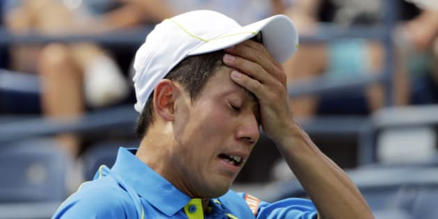 Kei Nishikori, of Japan, reacts after losing a point to Benoit Paire, of France, during the first round of the U.S. Open tennis tournament, Monday, Aug. 31, 2015, in New York. (AP Photo/Charles Krupa)