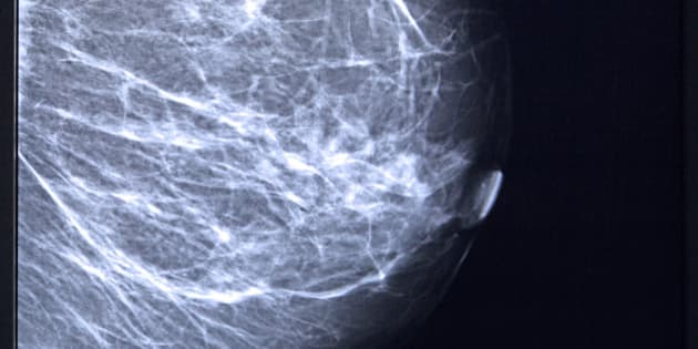 Mammogram of female breast