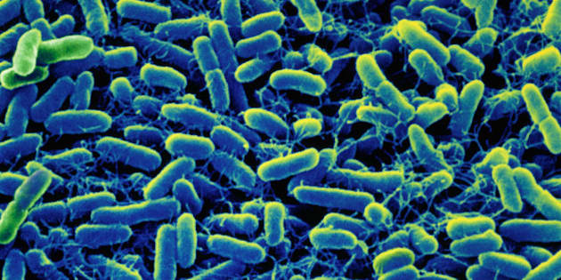 Colour Enhanced Scanning Electron Micrograph.Salmonella is a genus of bacteria:some common species cause food poisoning,eg.gasteroenteritis (abdominal pain,diarrhoea, vomiting) and enteric fever (typhoid and paratyphoid). print returned 27/10/00