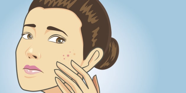 Women strain to problem acne face on blue background have text space