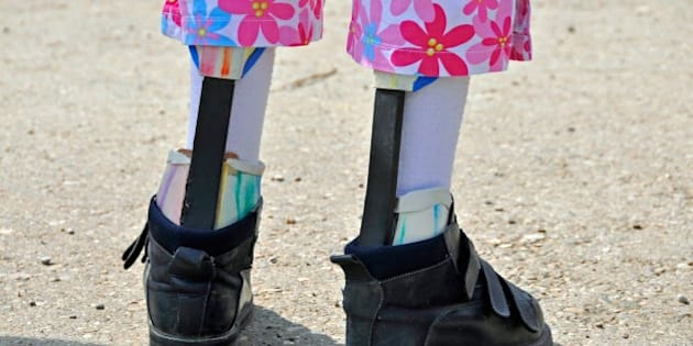 (GERMANY OUT) handicapped girl with artificial legs - 2008 (Photo by JOKER/Walter G. Allgöwer/ullstein bild via Getty Images)