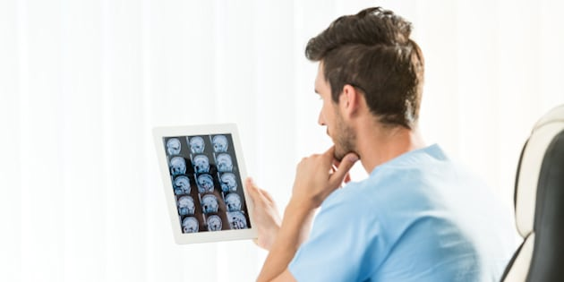 Male doctor studying an MRI scan of the brain on digital tablet. Actual scan of the young man's brain after the brain tumor removal.