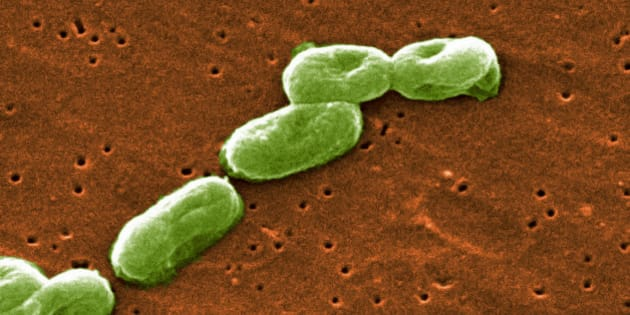Scanning Electron Micrograph of Burkholderia cepacia. (Photo by: Media for Medical/UIG via Getty Images)